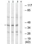 Western blot - Anti-HNT antibody (ab117582)