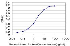 Sandwich ELISA - Anti-SMC1A antibody [1B9] (ab117610)