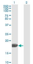 Western blot - Anti-FGF1 antibody [2E12] (ab117640)