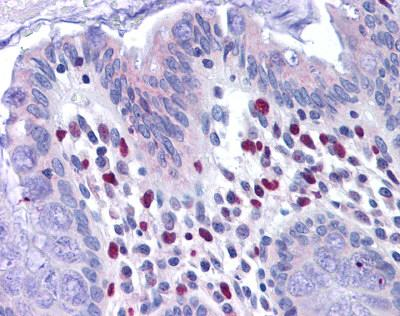 Immunohistochemistry (Formalin/PFA-fixed paraffin-embedded sections) - Anti-VENTX antibody (ab117643)