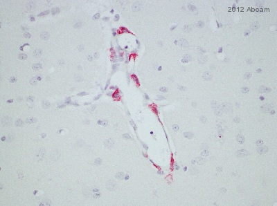 Immunohistochemistry (Formalin/PFA-fixed paraffin-embedded sections) - Anti-Mannose Receptor antibody [5C11] (ab117644)