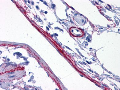 Immunohistochemistry (Formalin/PFA-fixed paraffin-embedded sections) - Anti-Synaptopodin antibody (ab117702)