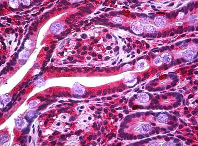 Immunohistochemistry (Formalin/PFA-fixed paraffin-embedded sections) - Anti-STOX2 antibody (ab117713)