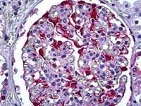 Immunohistochemistry (Formalin/PFA-fixed paraffin-embedded sections) - S100 alpha 6 antibody [6B5] (ab117714)