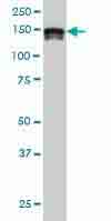Western blot - Anti-SA2 antibody [3C6] (ab117725)