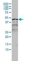 Western blot - Anti-Retinoic Acid Receptor alpha antibody [2C9-1F8] (ab117728)