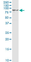 Western blot - Anti-PC1/3 antibody [3D2] (ab117735)