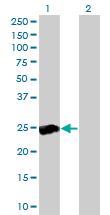 Western blot - Anti-RALB antibody [4D1] (ab117742)