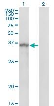 Western blot - Anti-Sprouty 1 antibody [3H4] (ab117744)