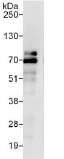 Immunoprecipitation - Anti-ZBTB2 antibody (ab117756)
