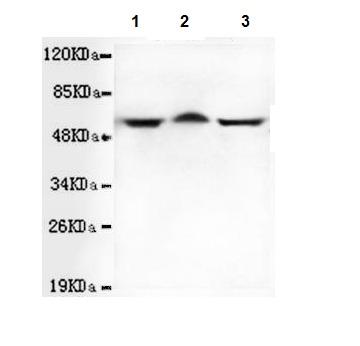 Western blot - Anti-TBLR1 antibody [4F3-A8-D9 ] (ab117761)