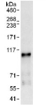 Immunoprecipitation - Anti-GAB1 antibody (ab117774)