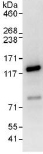 Immunoprecipitation - Anti-ZBT10 antibody (ab117786)