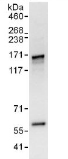 Immunoprecipitation - Anti-AHI1 antibody (ab117794)