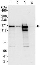 Western blot - Anti-Cingulin antibody (ab117796)