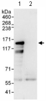 Immunoprecipitation - Anti-ZNF217 antibody (ab117798)