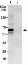 Immunoprecipitation - ACBD5 antibody (ab117800)