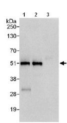 Immunoprecipitation - Anti-ZNF787 antibody (ab117810)