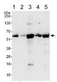 Western blot - Anti-ATL3 antibody (ab117819)