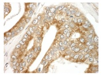 Immunohistochemistry (Formalin/PFA-fixed paraffin-embedded sections) - Anti-MAPRE1 antibody (ab117821)