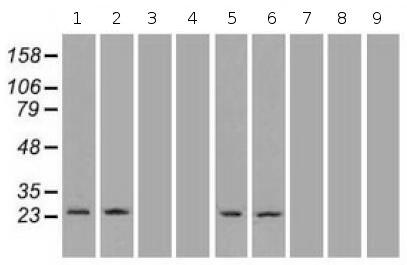 Western blot - Anti-Neurogenin 1 antibody [10B10] (ab117847)