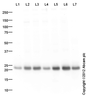 Western blot - Anti-GST3 / GST pi antibody (ab117885)