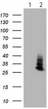 Western blot - Anti-Aquaporin 1 antibody [10C11] (ab117970)