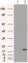 Western blot - Anti-SSX2 antibody [4D10] (ab117972)