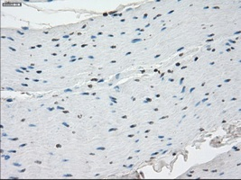 Immunohistochemistry (Formalin/PFA-fixed paraffin-embedded sections) - Anti-SSX2 antibody [4D10] (ab117972)