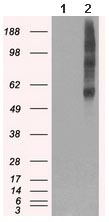 Western blot - Anti-VMAT2 antibody [10C11] (ab117988)