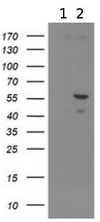 Western blot - Anti-XRCC4 antibody [4H9] (ab118008)