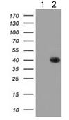 Western blot - Anti-GALE antibody [1C4] (ab118033)