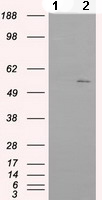 Western blot - Anti-IFIT1 antibody [3G8] (ab118062)