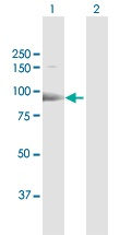 Western blot - Anti-ESF1 antibody (ab118074)
