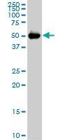 Western blot - Anti-CDADC1 antibody [2E8] (ab118075)