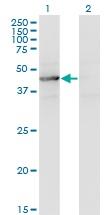 Western blot - Anti-TEX28 antibody (ab118077)
