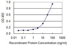 Sandwich ELISA - Anti-TEX28 antibody (ab118077)