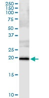 Immunoprecipitation - Anti-SSH2 antibody (ab118079)