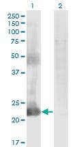 Western blot - Anti-MGC12981 antibody (ab118081)
