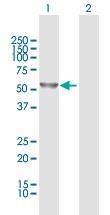 Western blot - Anti-DYNC1LI2 antibody (ab118082)