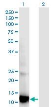 Western blot - Anti-RBP5 antibody [2D1] (ab118085)
