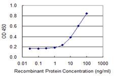 Sandwich ELISA - Anti-SNRPB2 antibody (ab118093)
