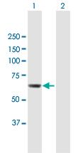 Western blot - Anti-CDADC1 antibody (ab118097)