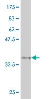 Western blot - Anti-EYS antibody (ab118104)