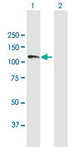 Western blot - Anti-ANKRD20A1 antibody (ab118106)