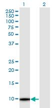 Western blot - Anti-TMSB4Y antibody (ab118107)