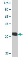 Western blot - Anti-CHST5 antibody (ab118108)