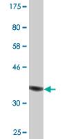 Western blot - Anti-MAP1S antibody (ab118111)