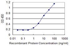 Sandwich ELISA - Anti-ARID5B antibody (ab118112)