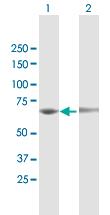 Western blot - Anti-EEPD1 antibody (ab118113)